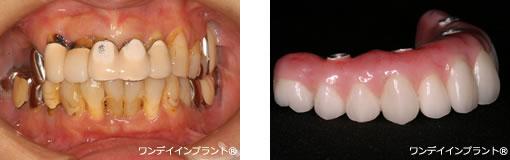 歯 が 長く なる